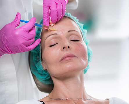 Facial filler injections