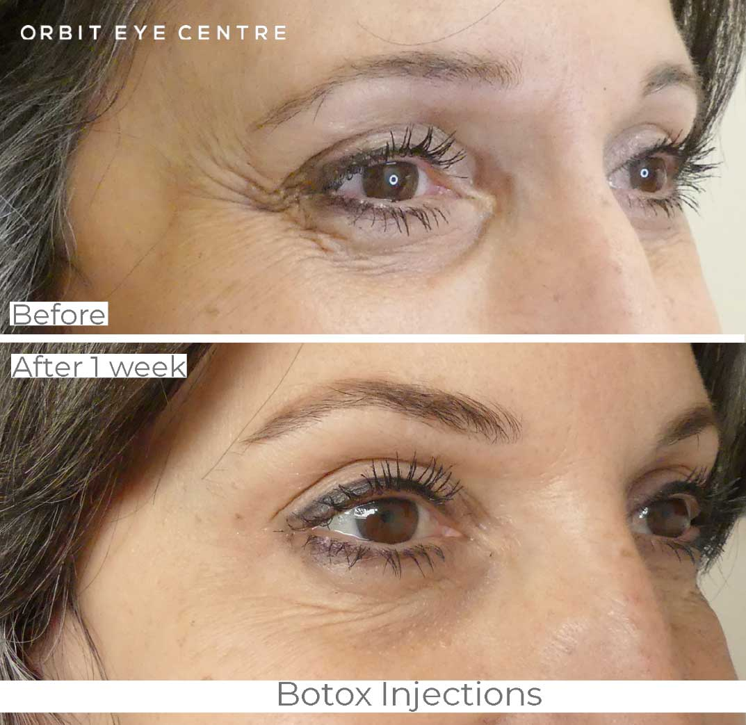 Botox, Cosmetic Services - Before & After